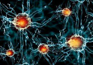 Simple Strategies to Improve Brain Health